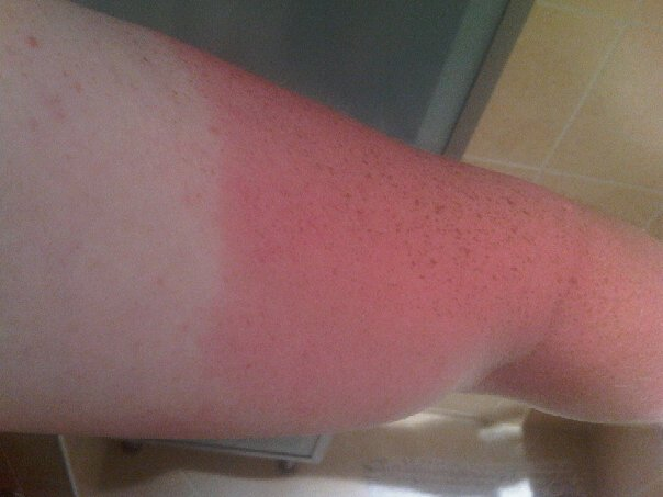 25. What happens when you go walking with no sun cream!.jpg